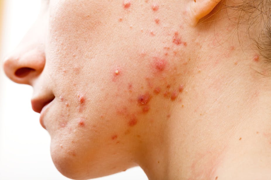 Cystic Acne Causes and Remedies