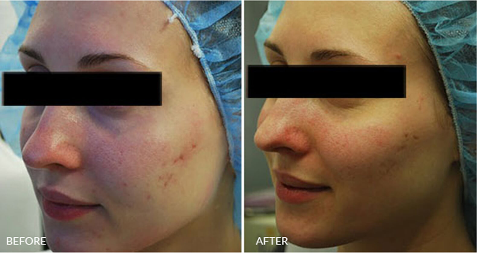 IPL Acne Scars Treatment