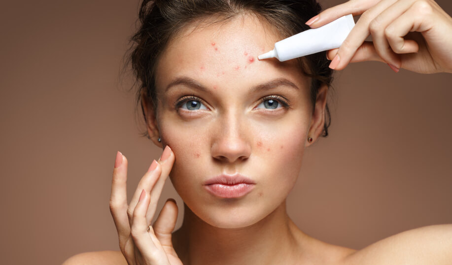 Treatment For The Acne Scars